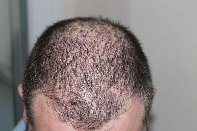 Hair Transplant Surgeon Guide