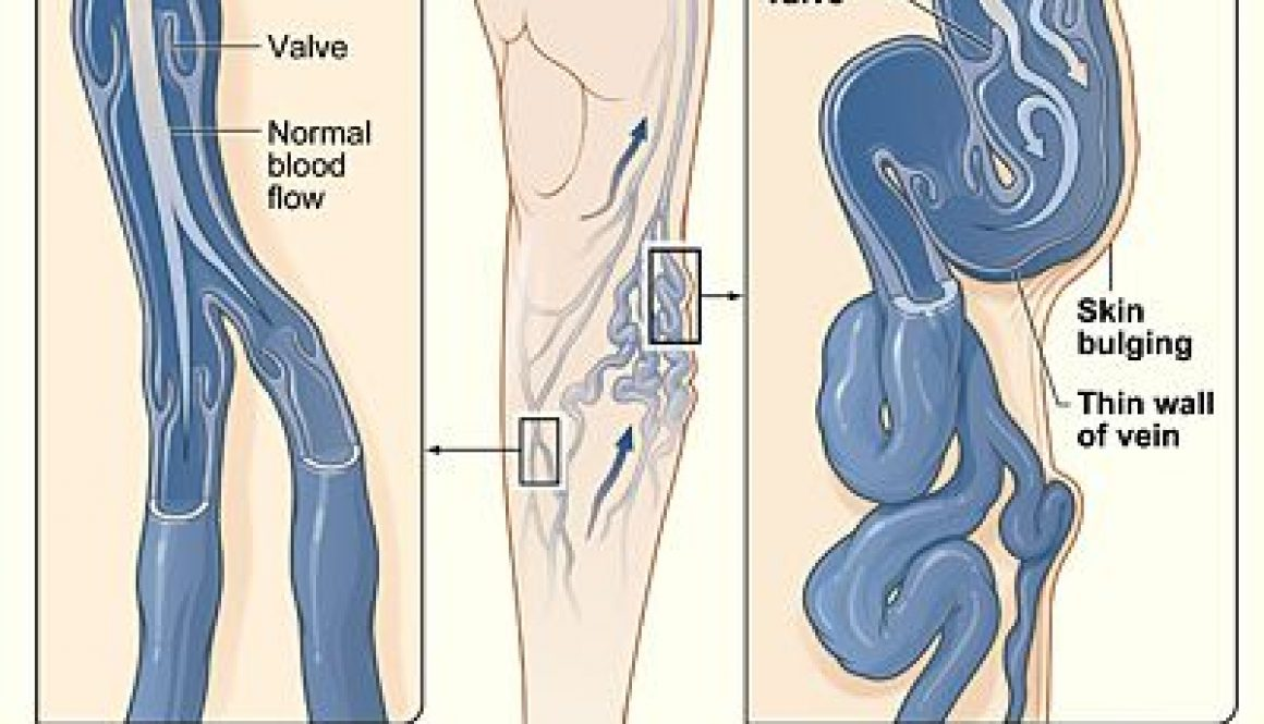 Varicose Vein Causes, Symptoms and Treatment