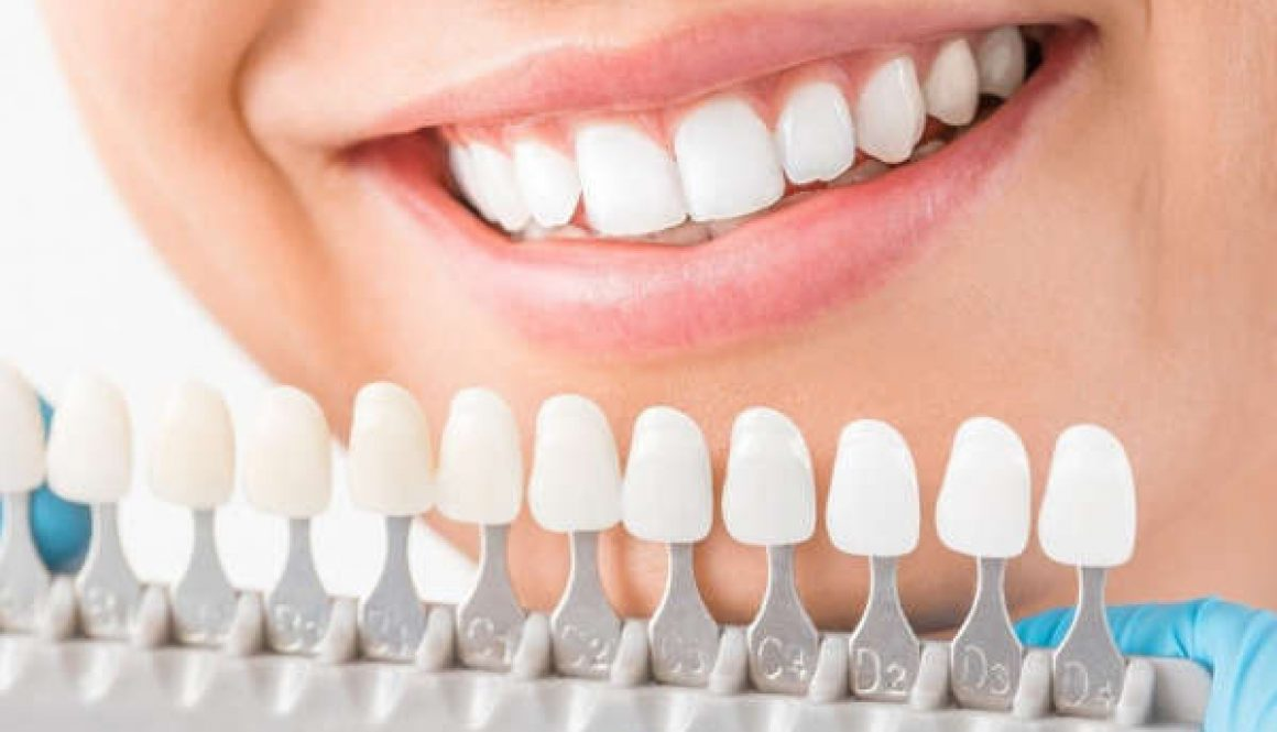 Factors That Need Consideration On Teeth Whitening Services